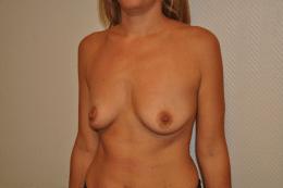 prothèses anatomiques pré-pectorales 395 cc