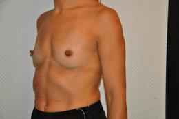 prothèses anatomiques rétro-pectorales 335 cc