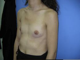 prothèses rondes rétro-pectorales