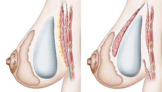 Augmentation mammaire par implants : devant ou derrière le muscle ?